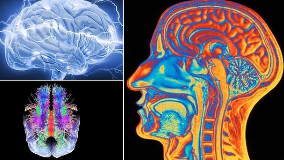 Imágenes del cerebro