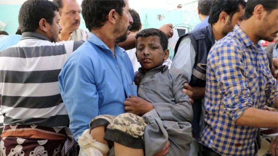 یمن: پر بس ګاډي بمبارۍ کې ماشومان وژل شوي