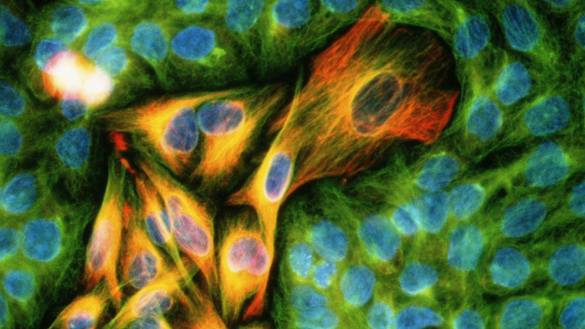 Pioneering cancer drug combination approved