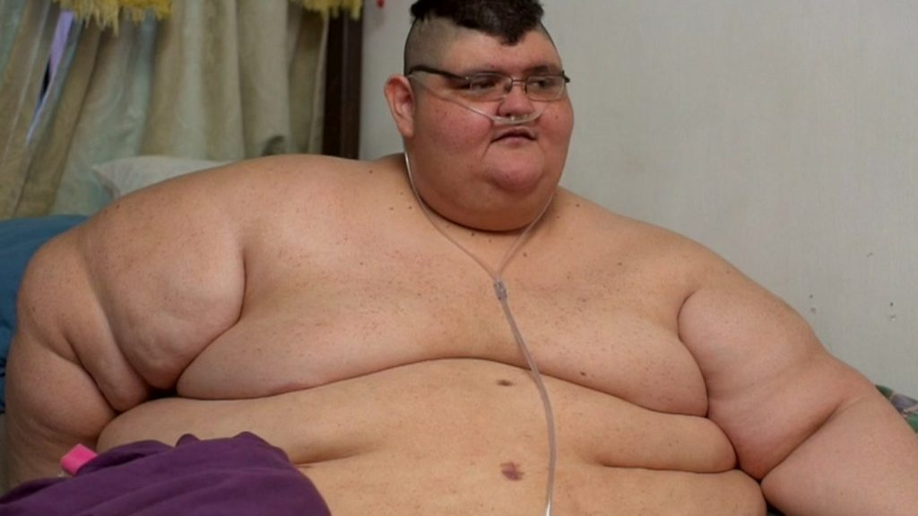 The world's most obese man's attempt to lose weight