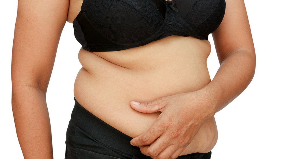 Mujer con sobrepeso.