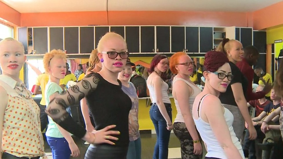 Hunt to find first Mr and Miss Albino held in Kenya