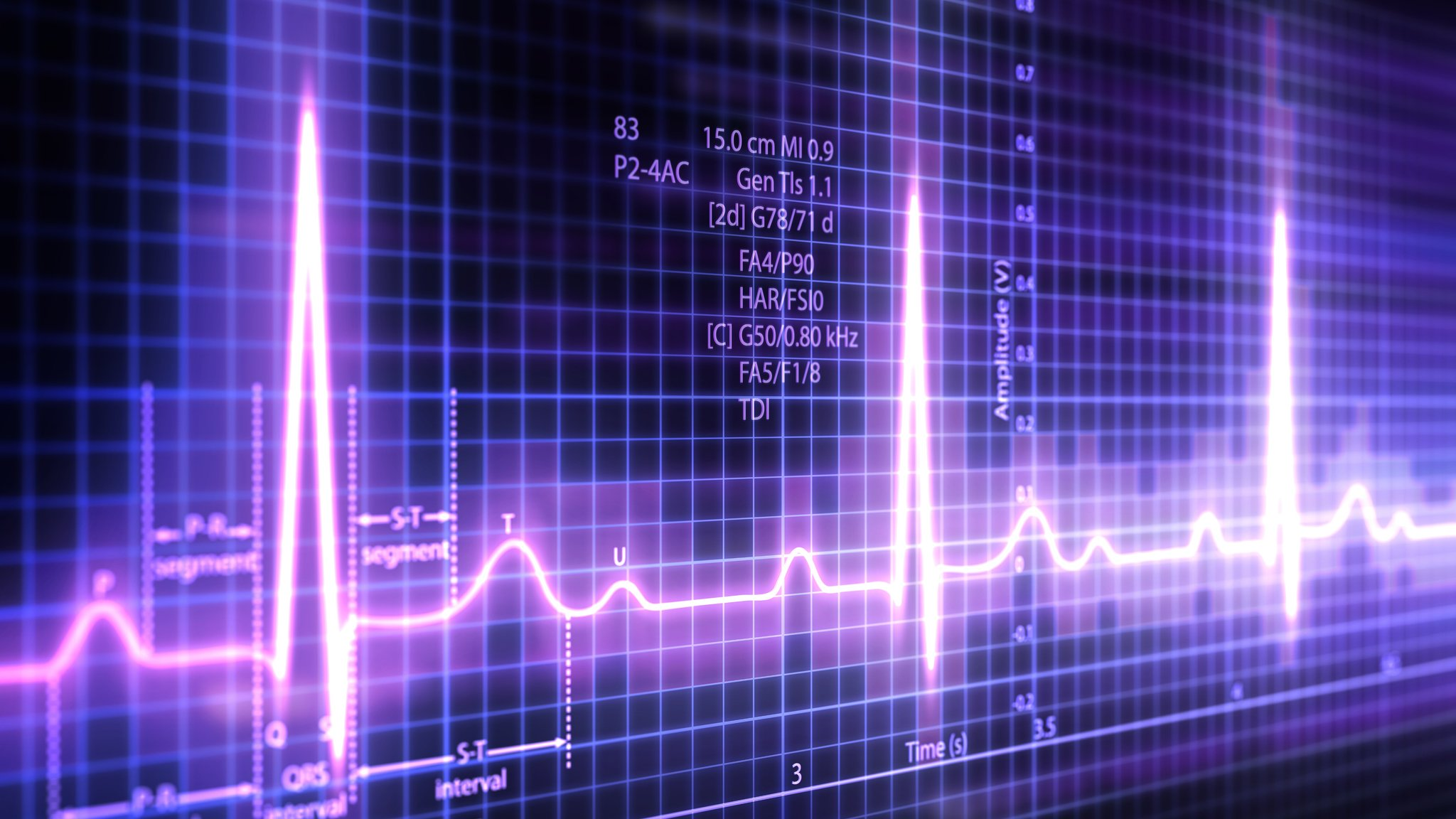 'Thousands' of known bugs found in pacemaker code