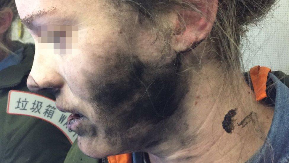 Mujer con quemaduras en el rostro luego de que le explotaran audífonos mientras dormía