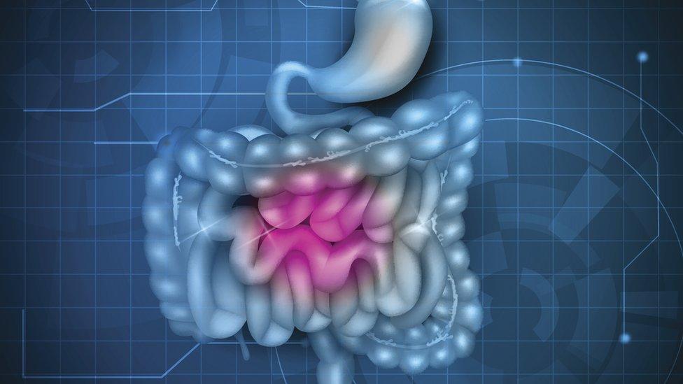 Gráfico de un intestino