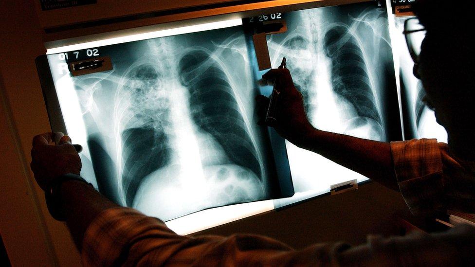 Що треба знати про туберкульоз