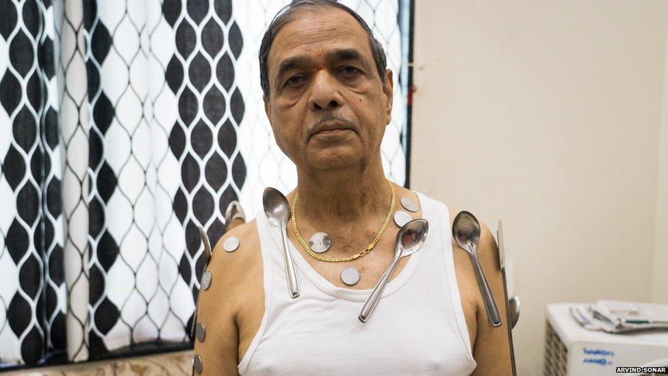 वैक्सीन लगने के बाद बुजुर्ग के शरीर से चिपकने लगे लोहे-स्टील के सामान, डाॅक्टर हैरान ; सरकार ने दिए जांच के आदेश