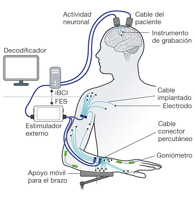 Ilustración de la tecnología empleada