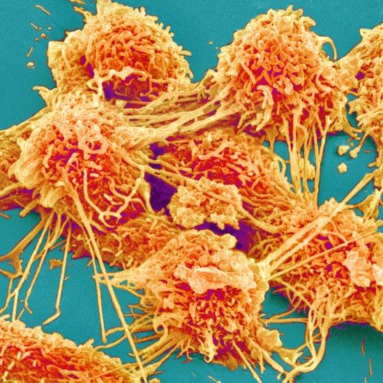 خلايا سرطانية في قولون مريض