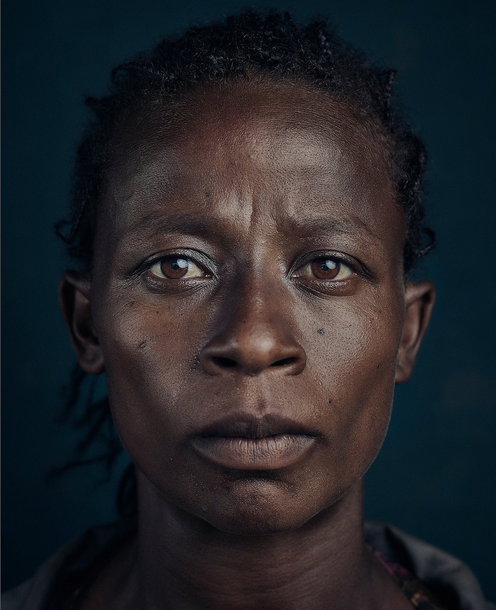 A portrait of woman who suffers from podoconiosis