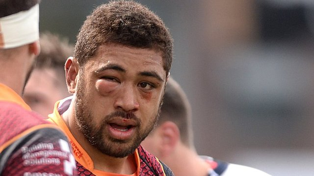 Dragons' Taulupe Faletau sports a swollen eye against Blues
