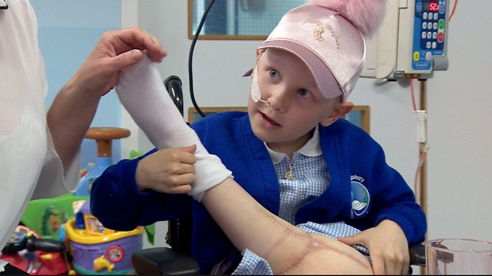 Girl has leg reattached backwards after cancer surgery