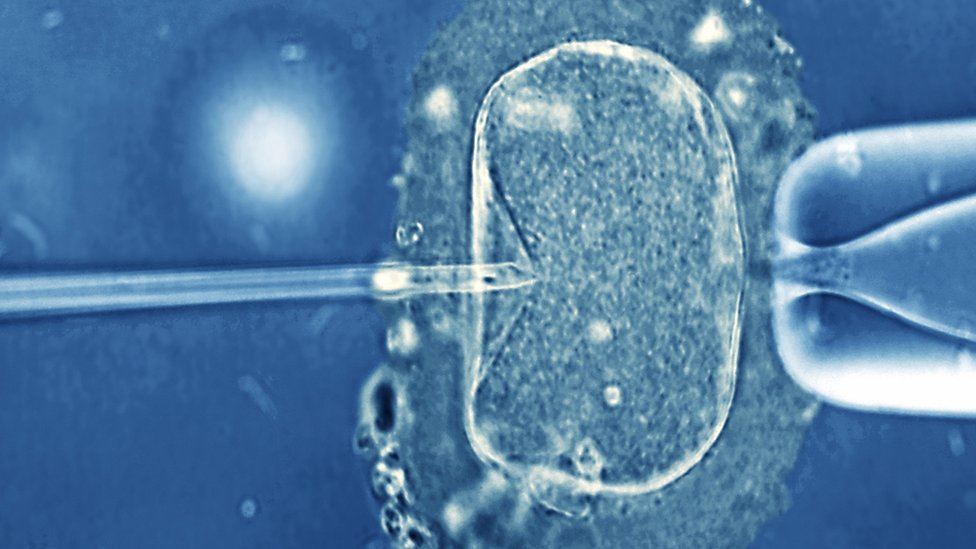 Miscarriage study points to IVF success chances