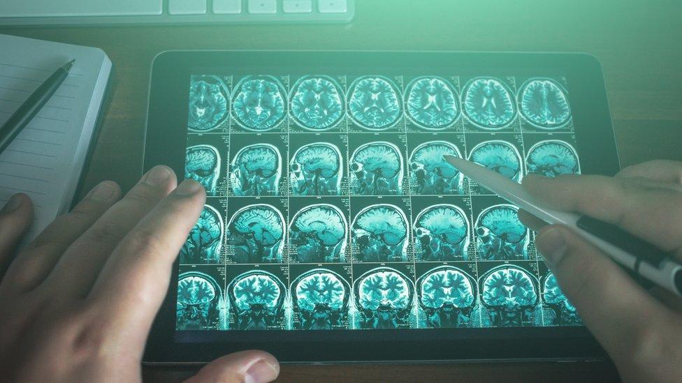 فحص للدماغ يظهر على حاسب محمول
