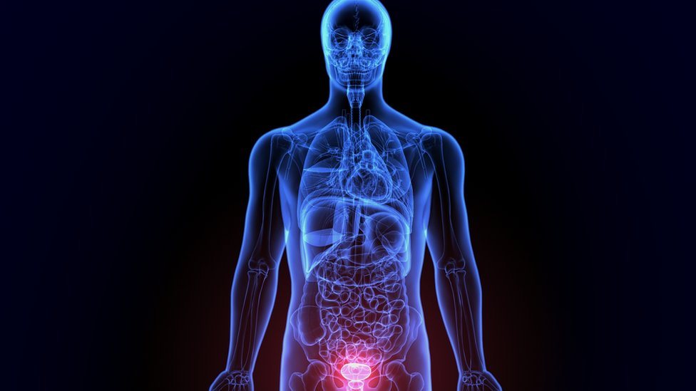 Prostatitis lime szén