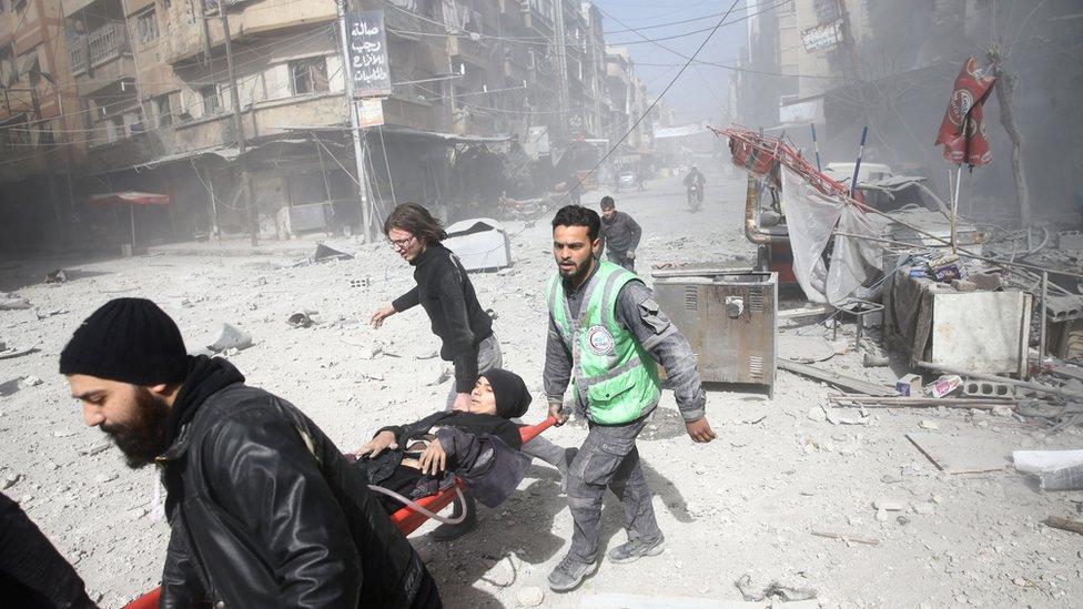 امرأة مصابة جراء القصف الذي استهدف الغوطة الشرقية