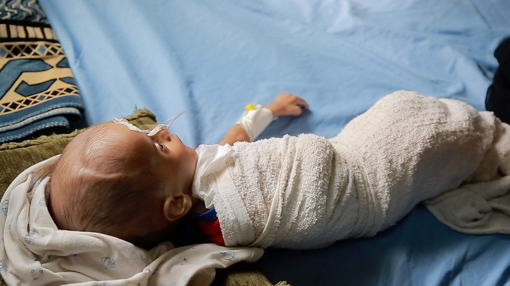 How children are starving in Yemen's war