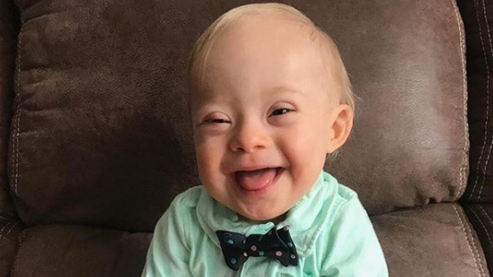 Lucas Warren tiene 18 meses y con síndrome de Down. (Foto: Gerber)