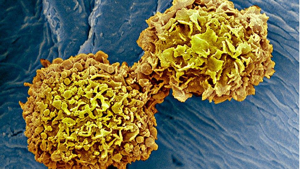 Células del cáncer de mama.