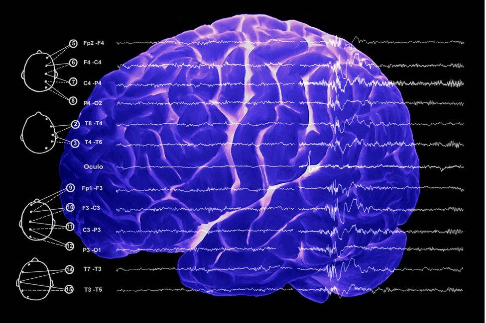 Resonancia magnética del cerebro.