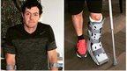 McIlroy sustains major ankle injury