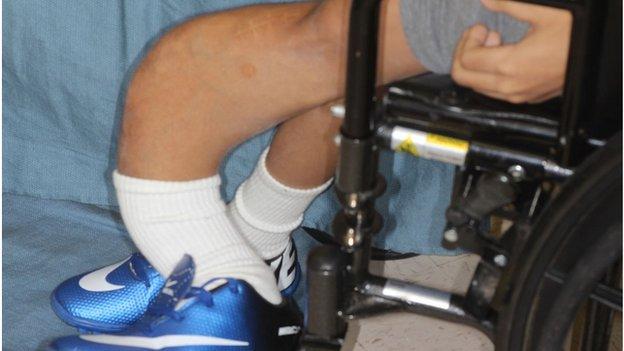 Las piernas de Emanuel