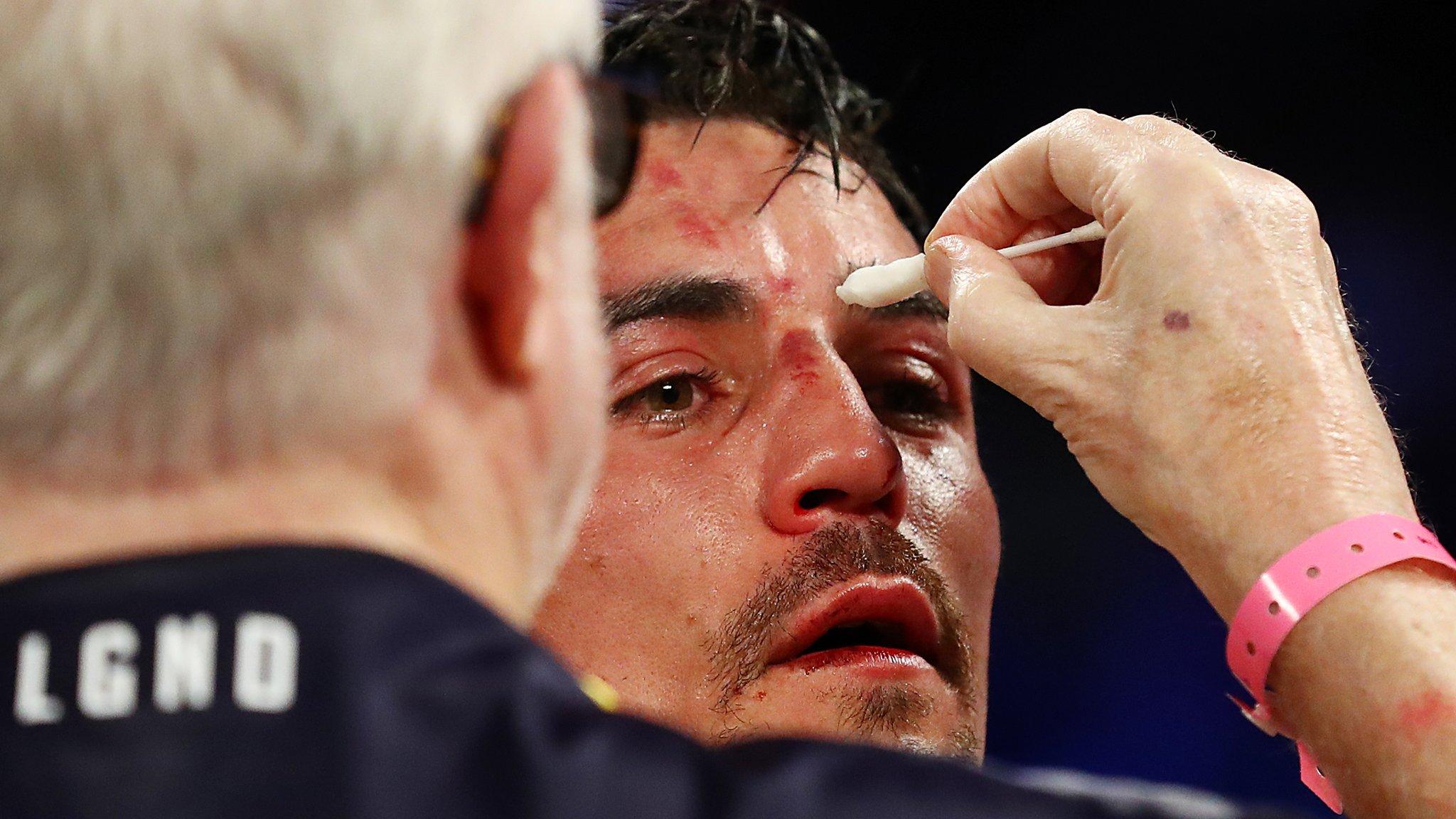 Anthony Crolla: Briton loses to Vasyl Lomachenko in Los Angeles