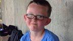 Boy, 9, dies after being hit by bat