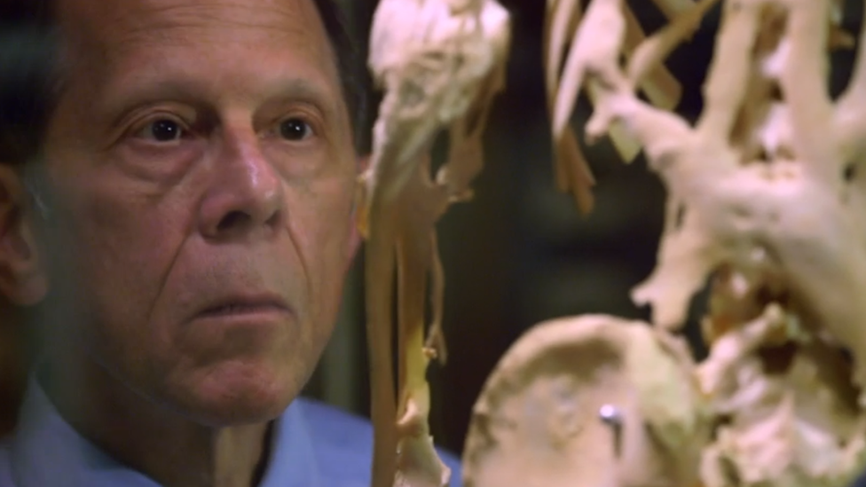 El doctor Kaplan observando el esqueleto de Harry Eastlack en el museo Mutter de Filadelfia.