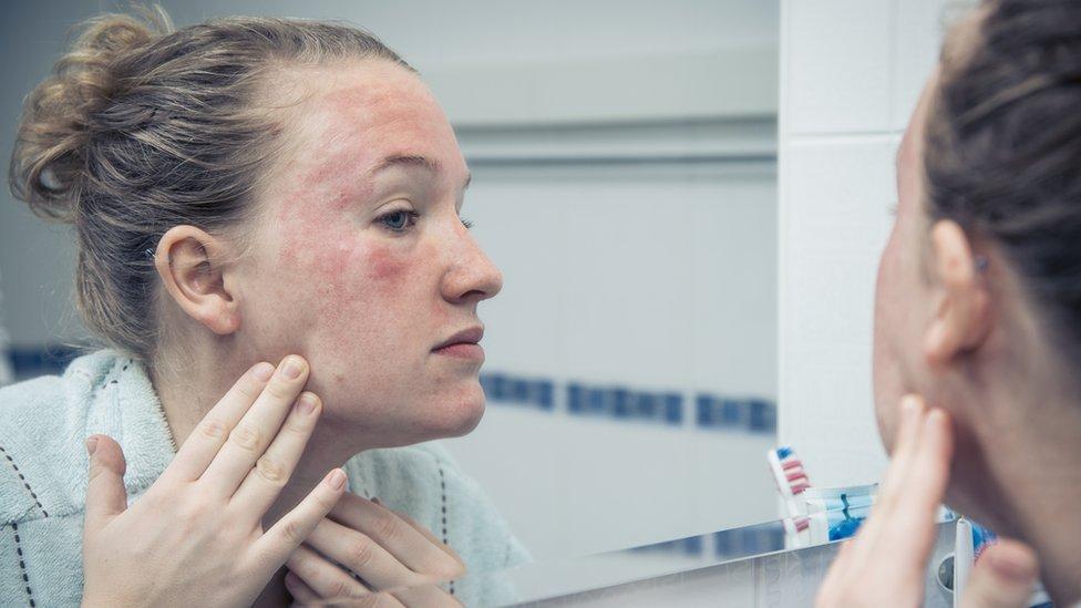 Mujer viendo una dermatitis en la cara
