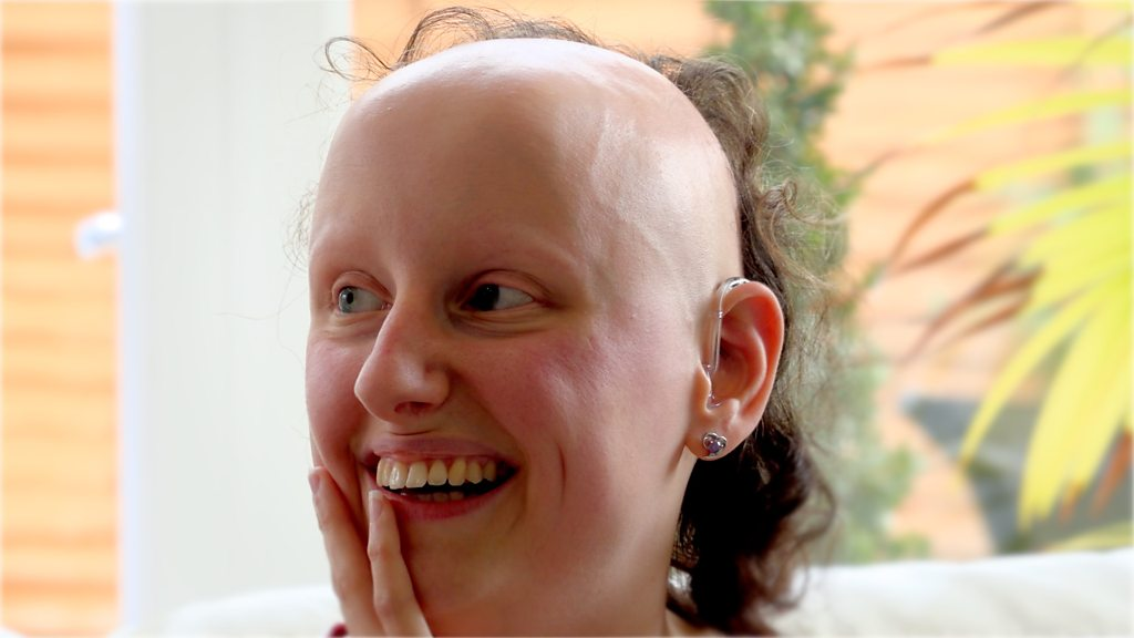 Alopecia: 'I can't control my hair loss'