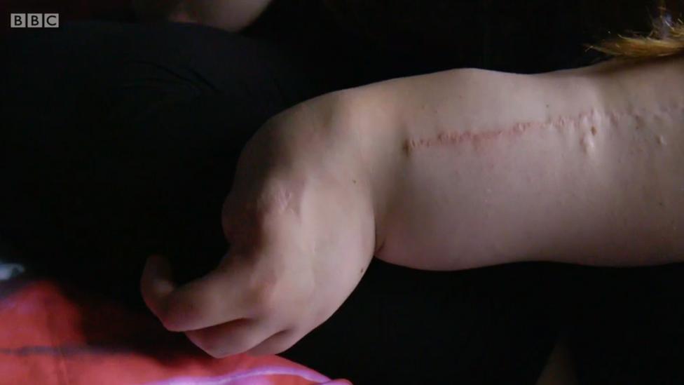 Cicatrices de operaciones pasadas en el brazo de Leah