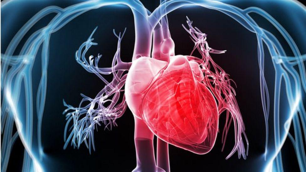 Las enfermedades coronarias, la principal causa de los ataques al corazón, están generadas normalmente por la obstrucción de las arterias debido al colesterol.
