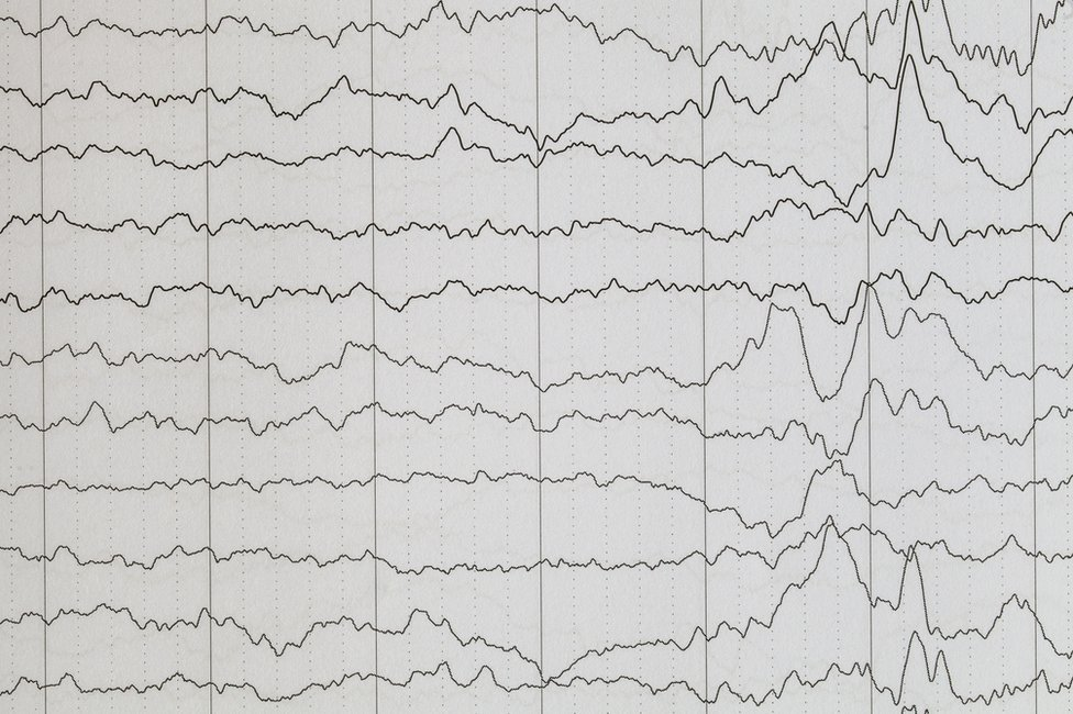 Ondas cerebrales en un electroencefalograma.