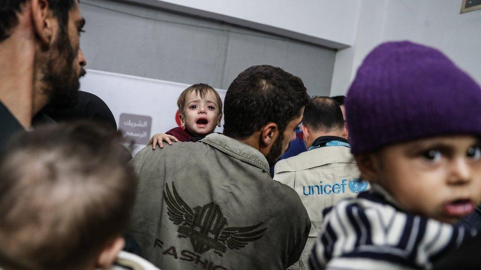 أطفال يعانون من سوء التغذية في عيادة بالغوطة الشرقية