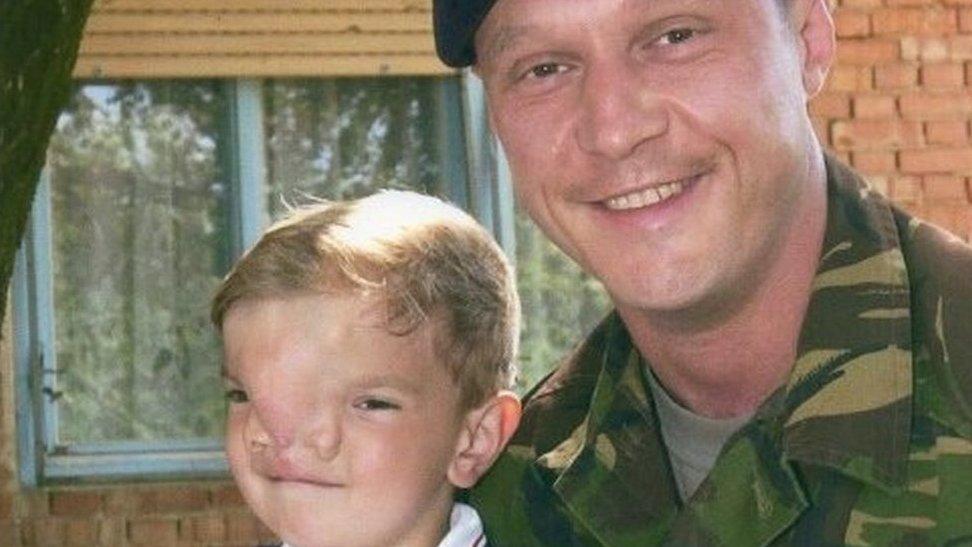 Ex-soldier receives Serbian award for cleft boy help