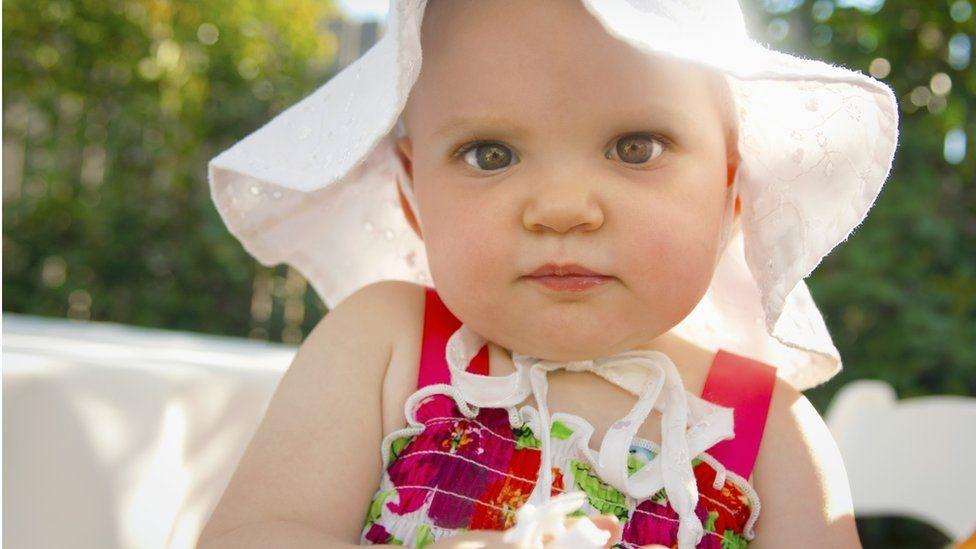 تعريض بشرة الأطفال للشمس لتسميرها