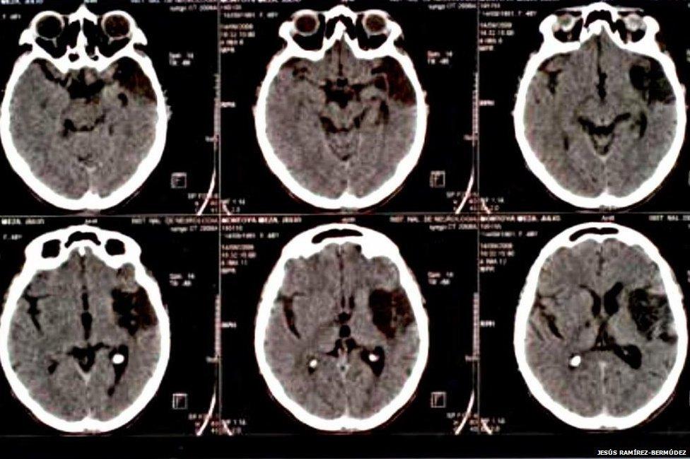 Daño cerebral en un paciente con síndrome de Cotard (Foto: Jesus Bermudez-Ramirez)
