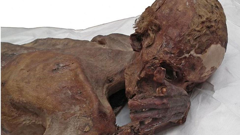 Imagen de la momia masculina