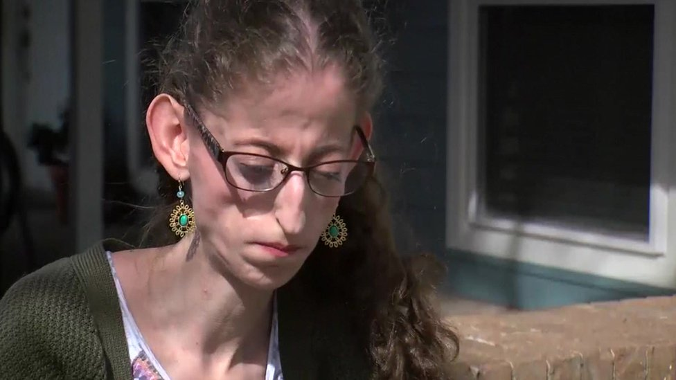 Abby Solomon, estudiante de 21 años que padece síndrome progeroide neonatal