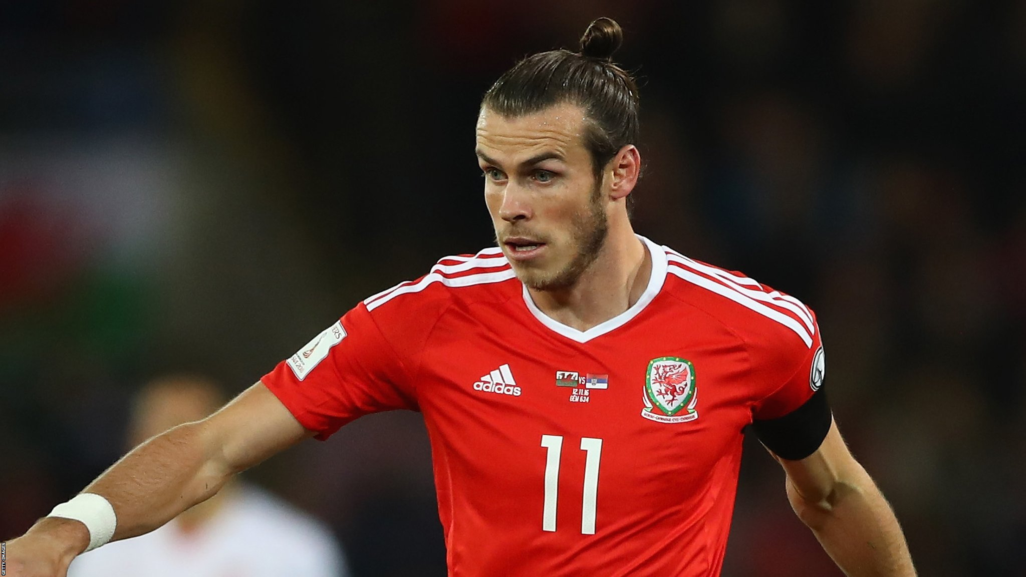 Gareth Bale is recovering well from ankle surgery, says Wales boss Coleman