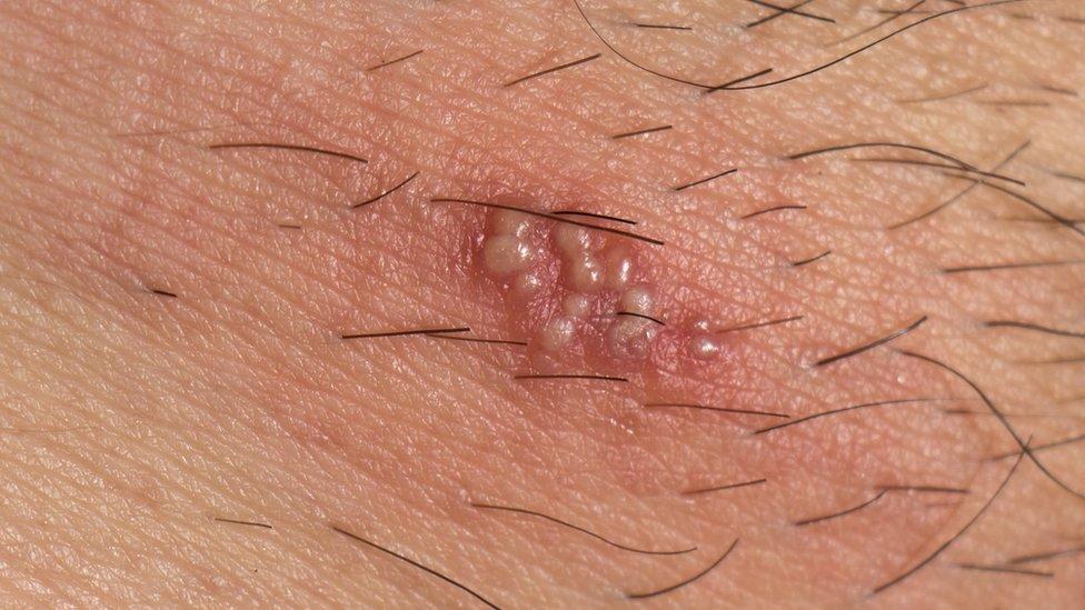 Detalle de las vesículas o ampollas del herpes zóster.