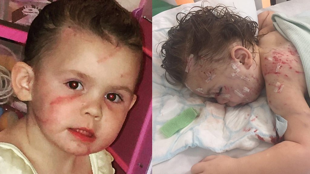 <![CDATA['My three-year-old niece was attacked by five dogs']]>