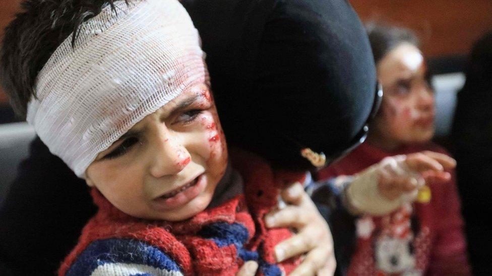 طفل سوري في الغوطة