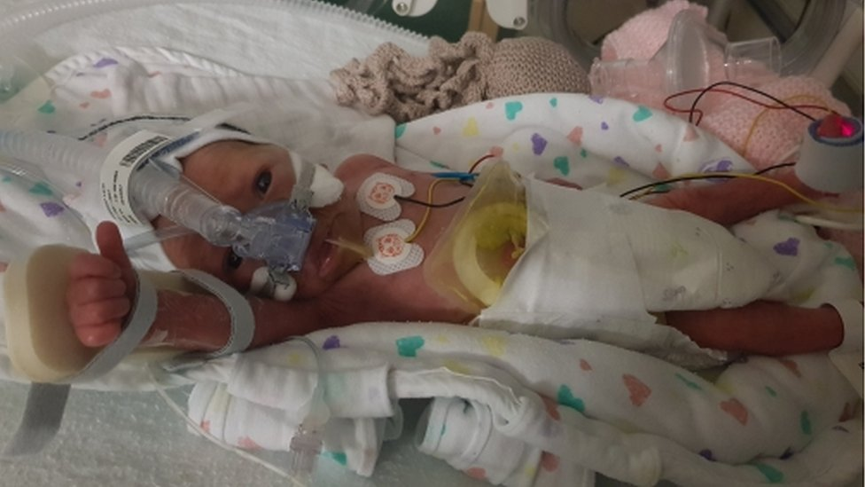 'Miracle' baby whose heart stopped for 22 minutes turns one