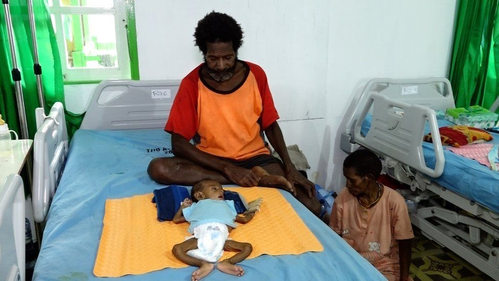 أسرة يوليتا سافرت مدة يومين حتى تصل إلى المستشفى