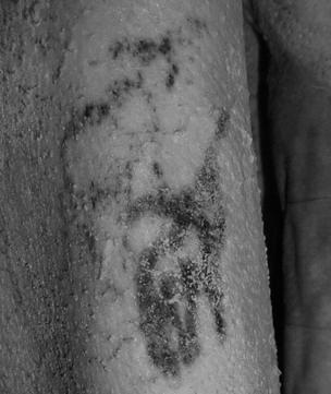 Imagen del tatuaje de la momia varón.