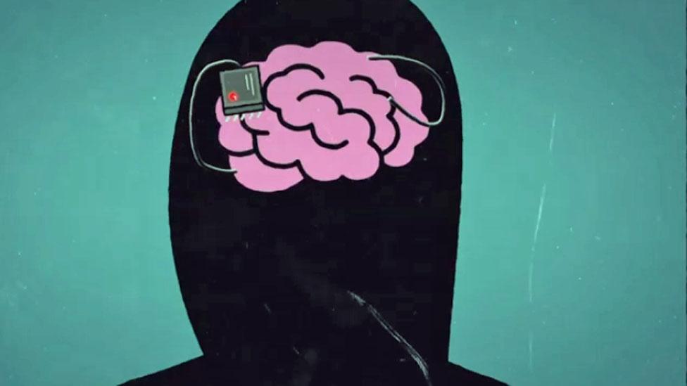 cerebro con aparato