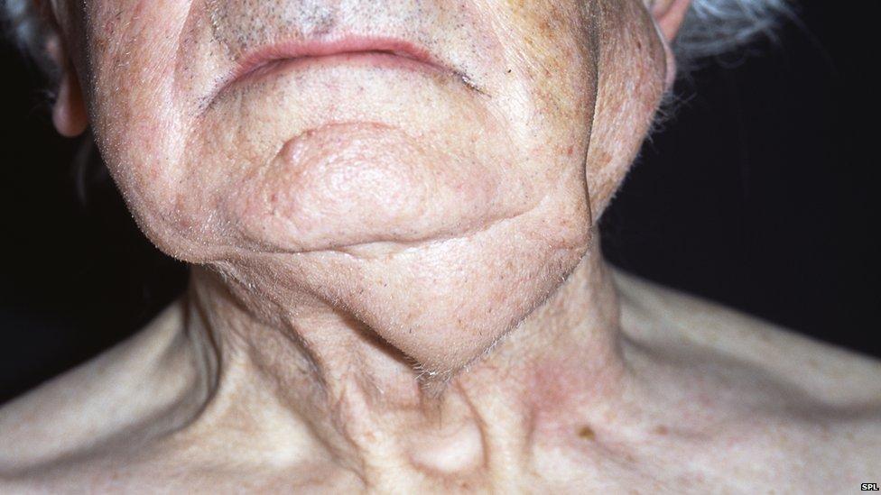 human papillomavirus mouth and throat cancer