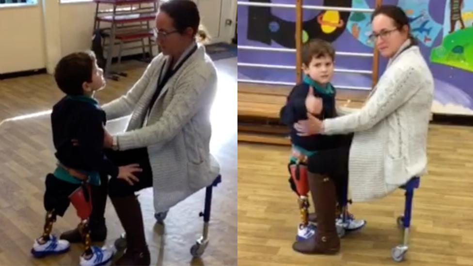 Romeo walking on his prosthetics